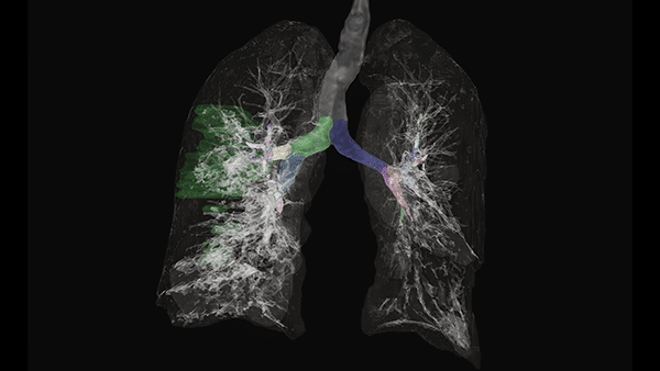 NVIDIA Use AI to Trace COVID-19 Disease Progression in Chest CT Images